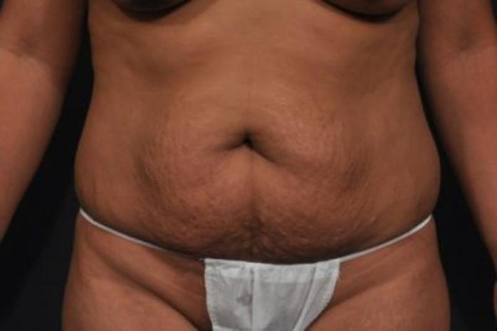 Case #212 – Liposuction