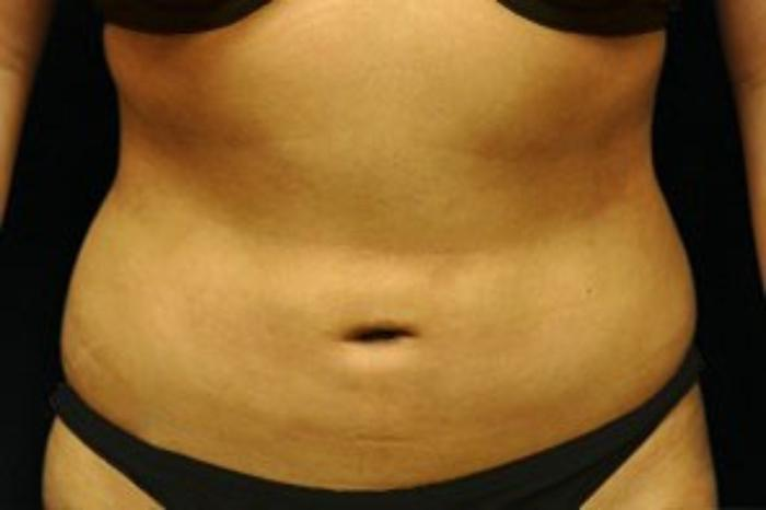 Case #2137 – Liposuction