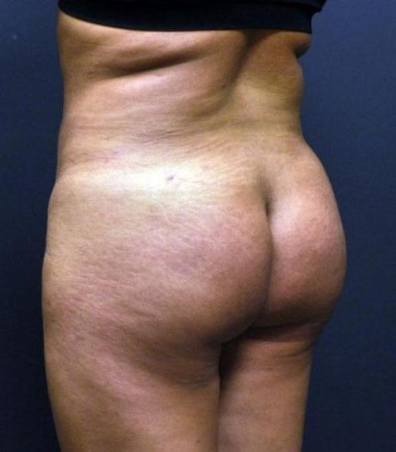 Case #2143 – Liposuction