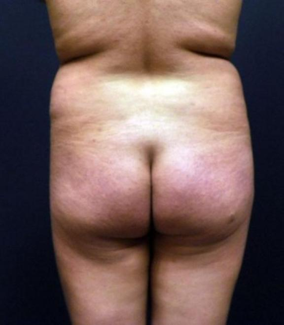 Case #2143 – Liposuction