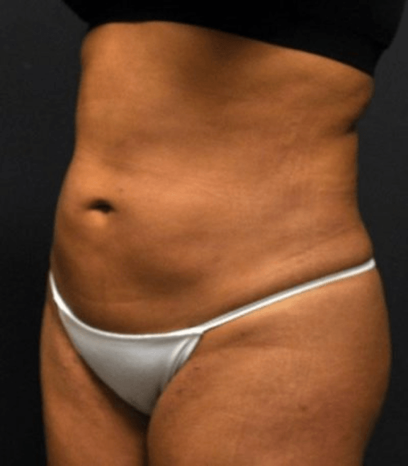 Case #2149 – Liposuction