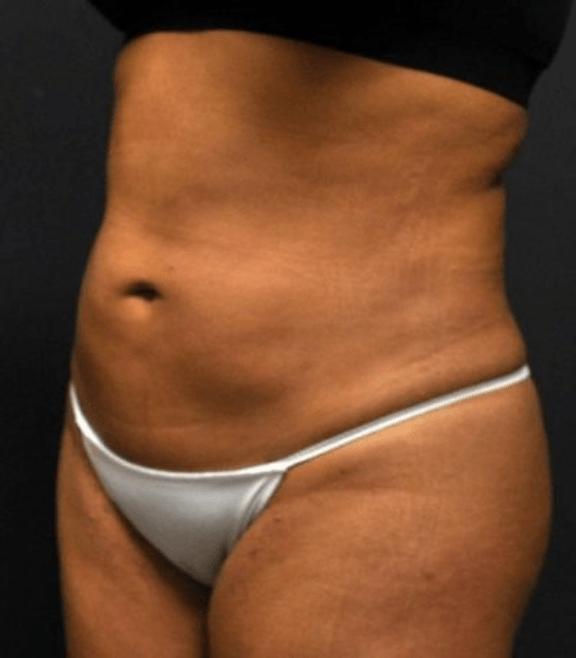 Case #2149 – Liposuction