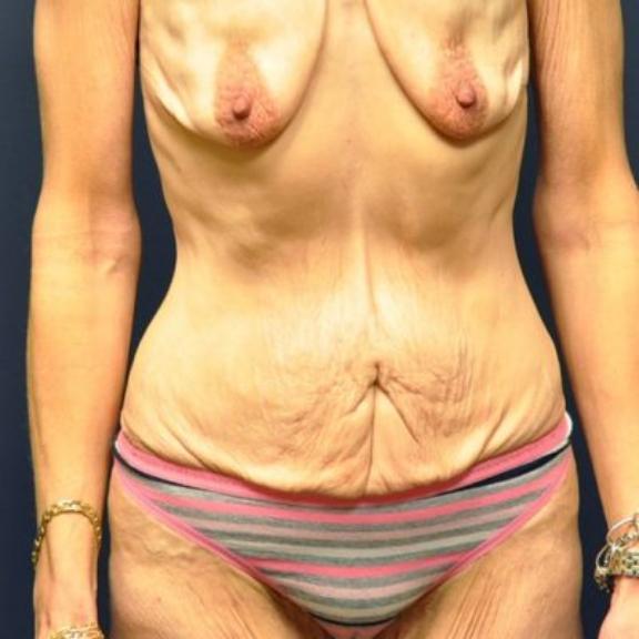 Case #224 – Tummy Tuck