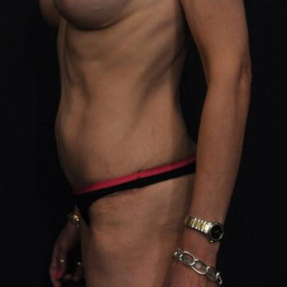 Case #224 – Liposuction