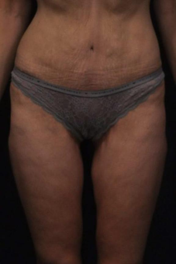 Case #2251 – Thigh Lift