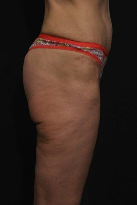 Case #2251 – Thigh Lift