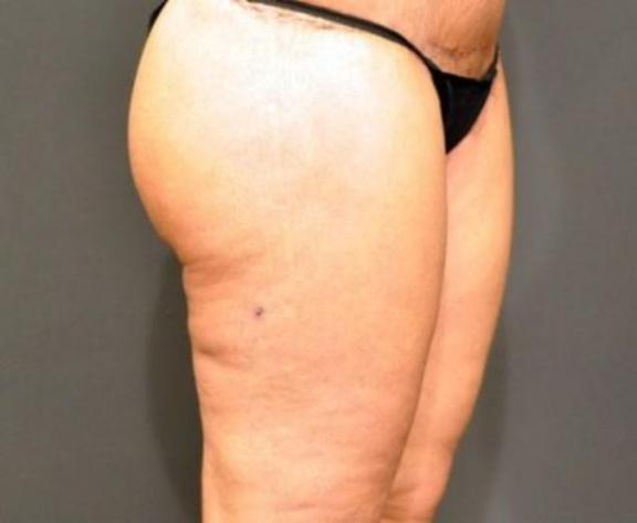 Case #2263 – Thigh Lift