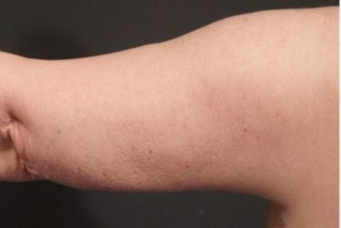 Case #2275 – Arm Lift
