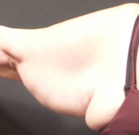 Case #2287 – Arm Lift