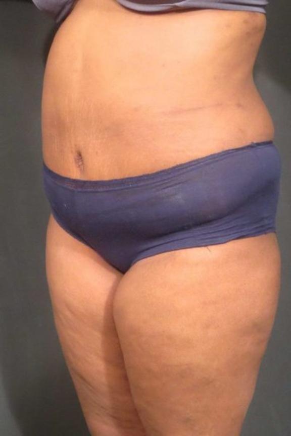 Case #236 – Liposuction