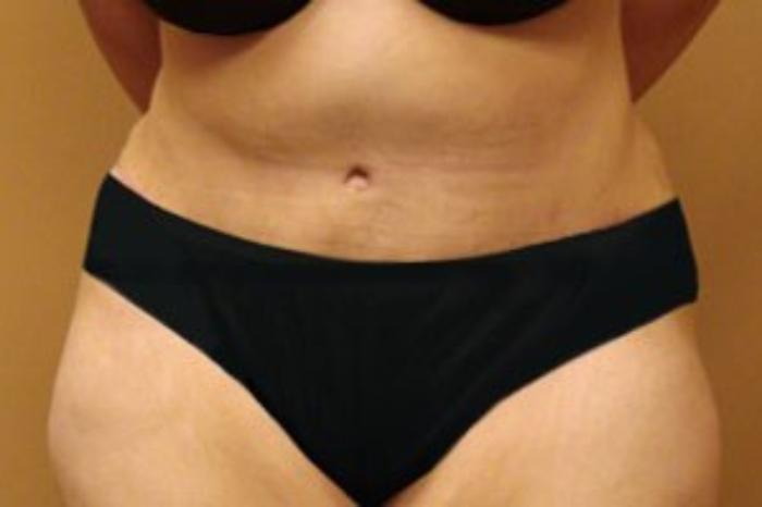Case #2477 – Liposuction