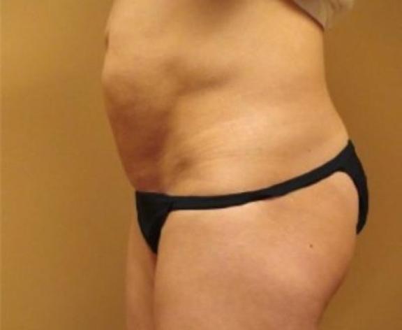 Case #256 – Tummy Tuck