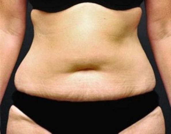 Case #260 – Liposuction
