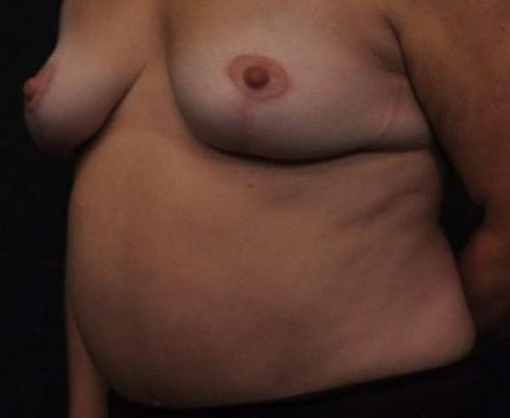Case #264 – Tummy Tuck
