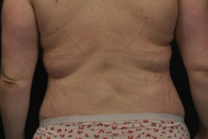 Case #272 – Tummy Tuck