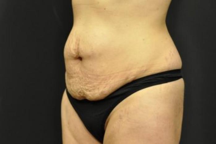 Case #286 – Tummy Tuck