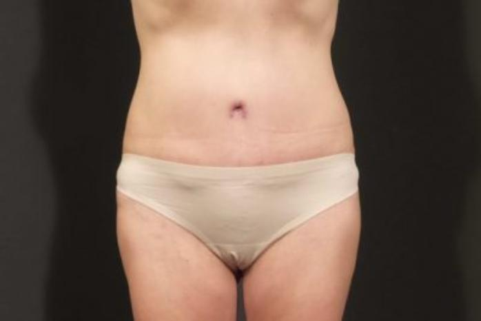 Case #310 – Tummy Tuck