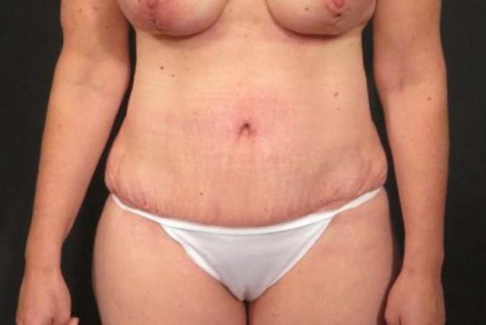 Case #324 – Tummy Tuck