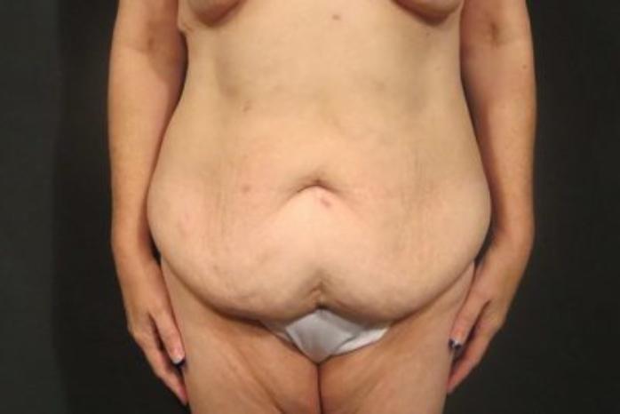 Case #348 – Tummy Tuck