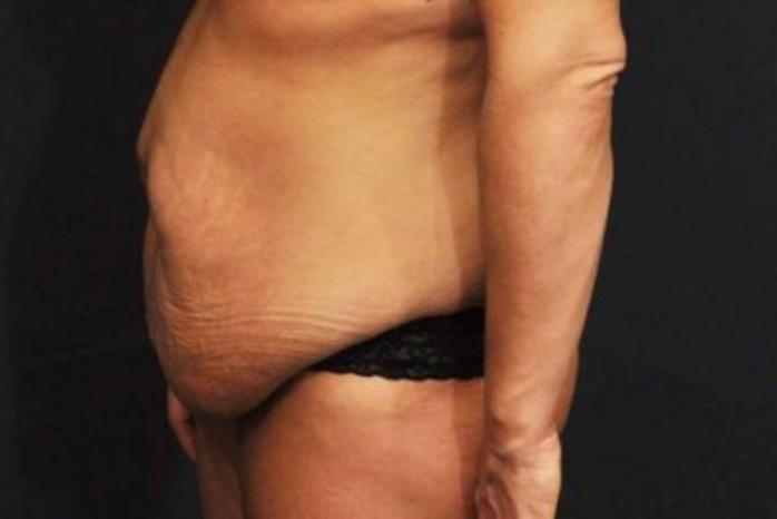 Case #360 – Tummy Tuck