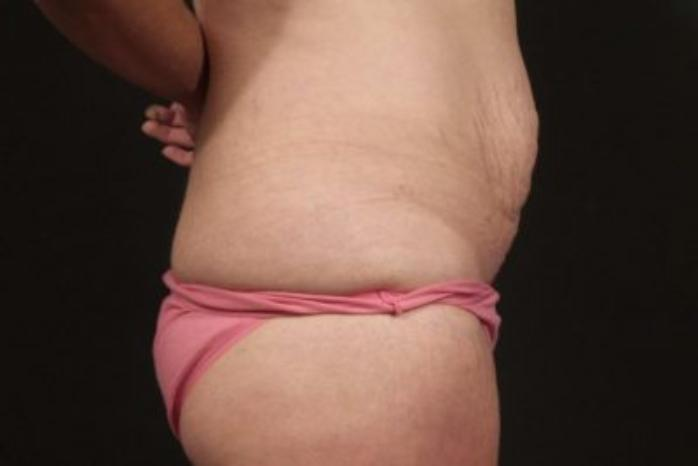 Case #372 – Tummy Tuck