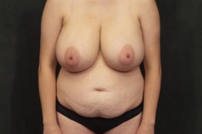 Case #3990 – Tummy Tuck
