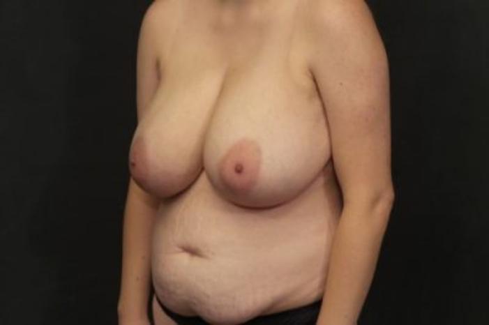 Case #3990 – Breast Lift