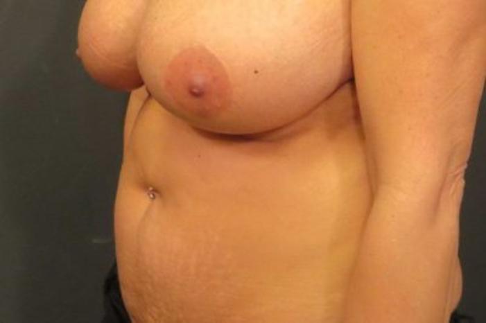 Case #402 – Liposuction