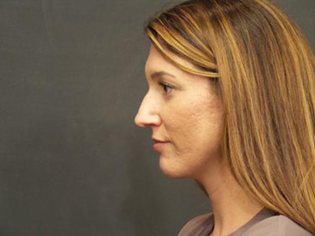 Case #4082 – Rhinoplasty