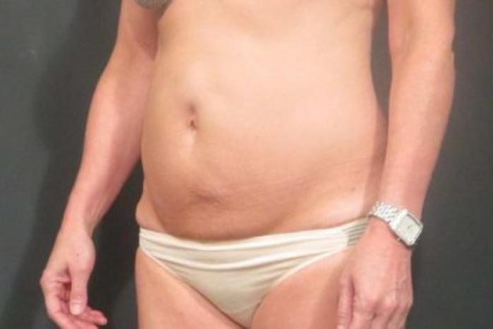 Case #414 – Liposuction