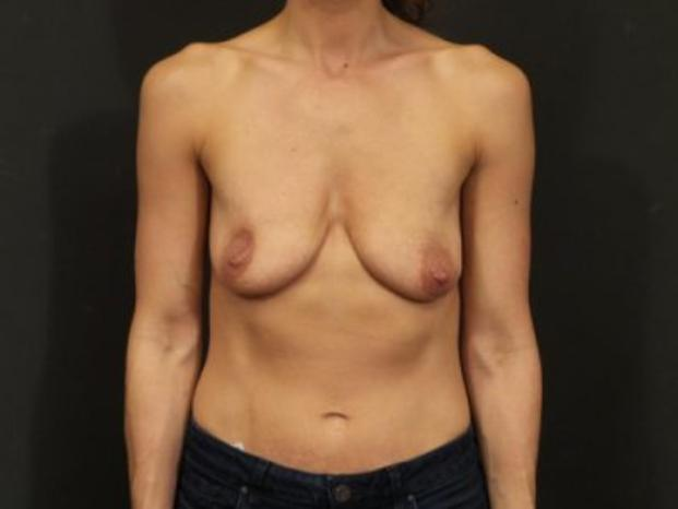 Case #4155 – Breast Lift