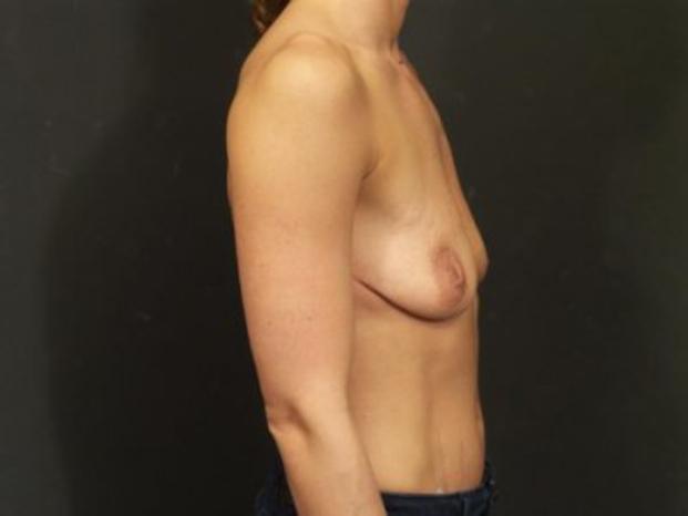 Case #4155 – Breast Lift