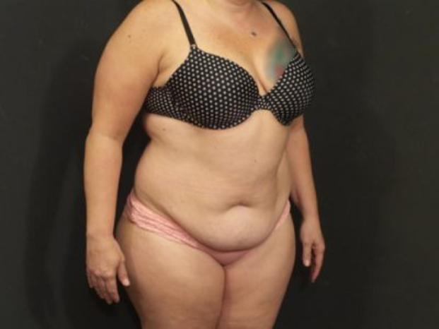 Case #4181 – Tummy Tuck