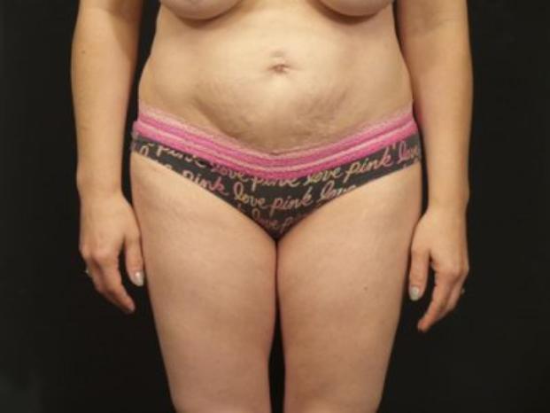 Case #4201 – Tummy Tuck