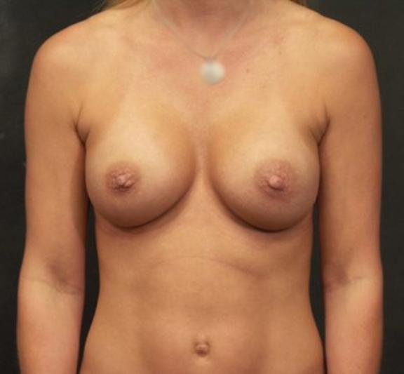 Case #4267 – Breast Augmentation