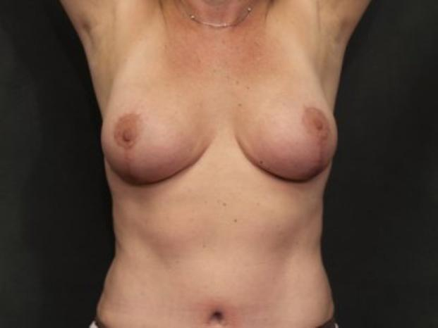 Case #4287 – Breast Lift