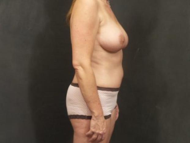 Case #4287 – Breast Lift