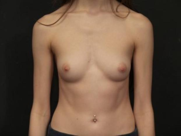 Case #4353 – Breast Augmentation