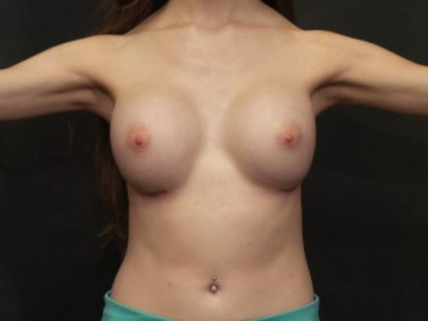 Case #4353 – Breast Augmentation