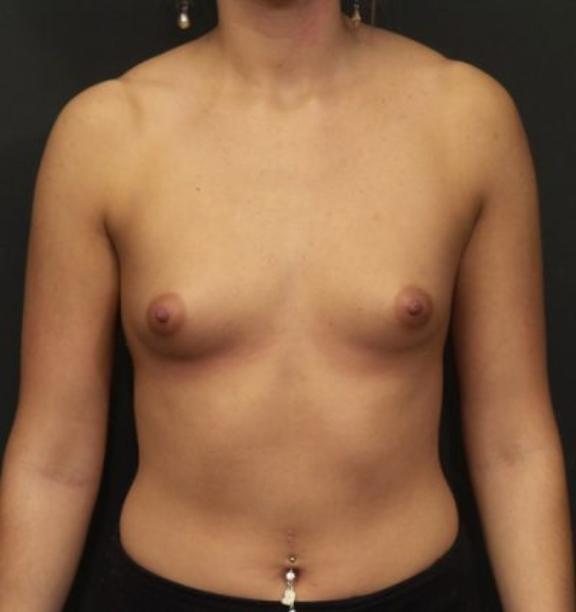 Case #4438 – Breast Augmentation