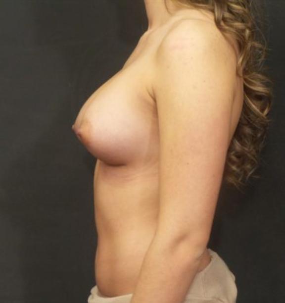 Case #4438 – Breast Augmentation