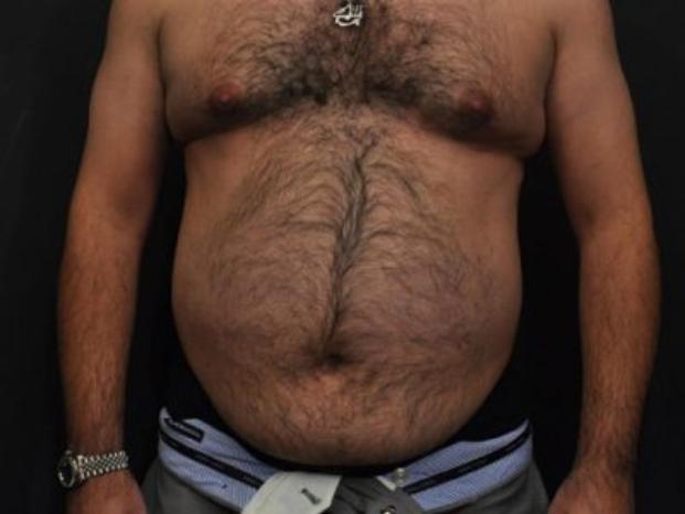 Case #4459 – Tummy Tuck