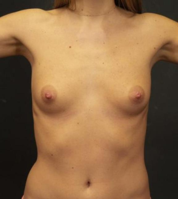 Case #4481 – Breast Augmentation