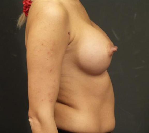 Case #4499 – Breast Augmentation