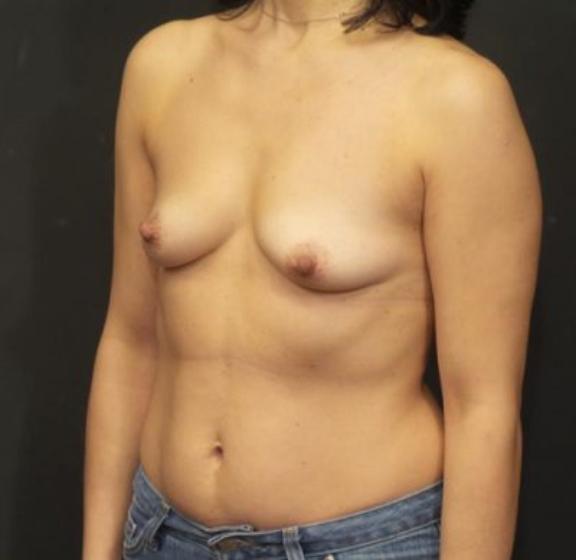 Case #4518 – Breast Augmentation