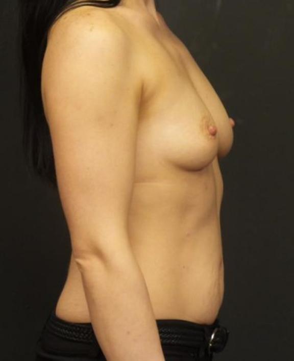 Case #4586 – Breast Augmentation