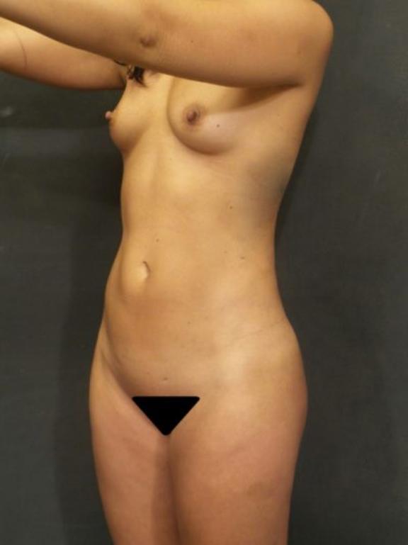 Case #4705 – Liposuction