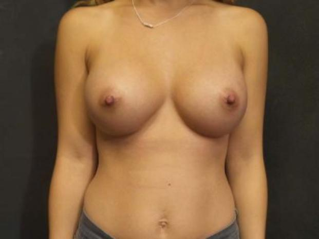 Case #4724 – Breast Augmentation