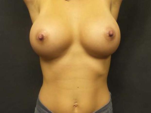 Case #4724 – Breast Augmentation