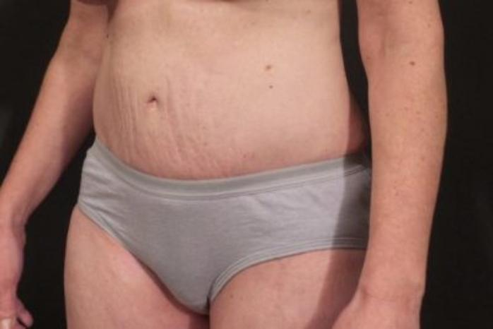 Case #472 – Tummy Tuck